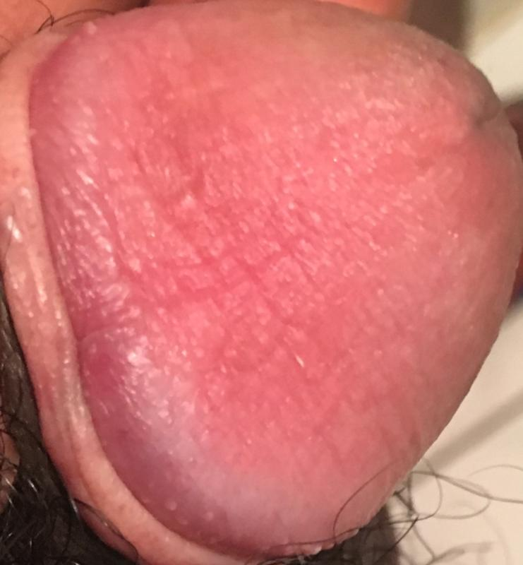 best of Rash penis Can strep throat